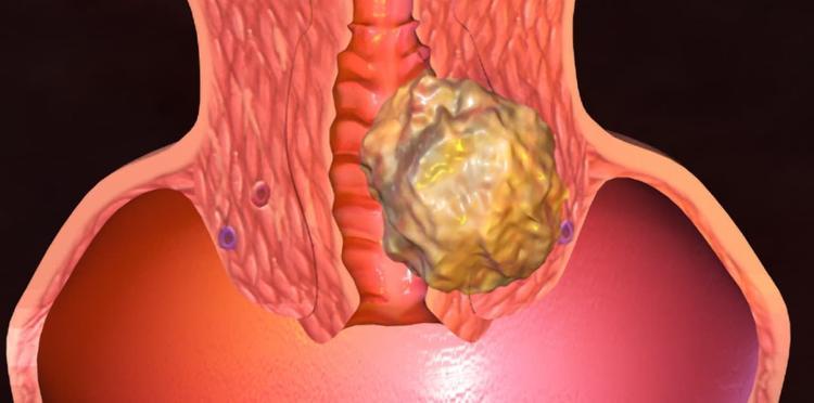 Рак репродуктивной  женской  системы