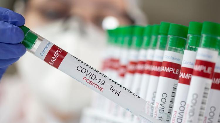 В Казахстане резко возросло число новых случаев COVID
